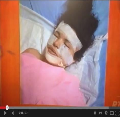 Diane Rodriguez se retira el silicón de su cara y cuerpo en una cirugia riesgosa-Siluetax.