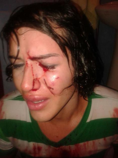 Intentan a asesinar a androgina en Durán - Ecuador -SiluetaX (5)