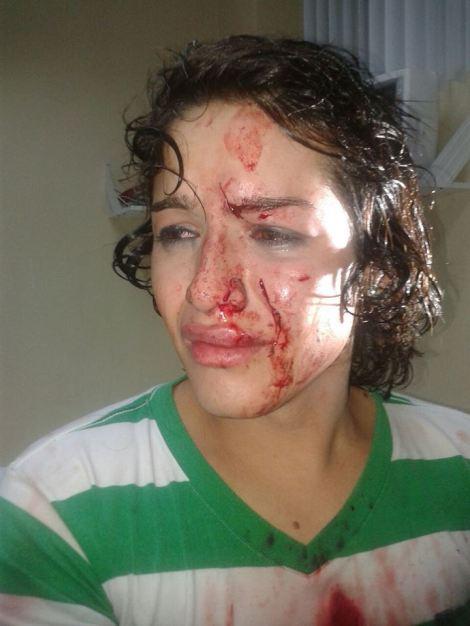 Intentan a asesinar a androgina en Durán - Ecuador -SiluetaX (7)